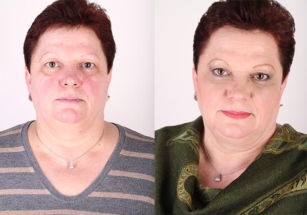 Vorher-Nachher Vergleich einer reifen Frau mit dunklen, kurzen Haaren und etwas helleren Augen als im Beispiel oben.